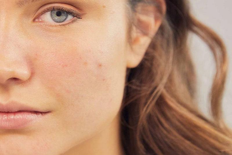 4 پاکسازی و رفع انسداد منافذ پوست صورت