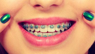 Photo of راهنمای انتخاب رنگ ارتودنسی دندان