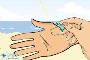 5 درآوردن قلاب ماهی گیری از انگشت دست