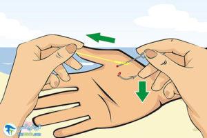 6 درآوردن قلاب ماهی گیری از انگشت دست