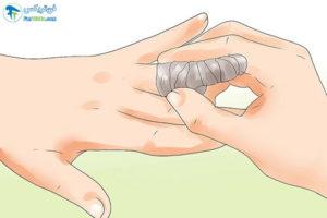 3 درمان خانگی عفونت تاول