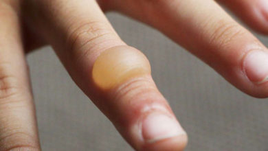 Photo of چگونه عفونت تاول را در خانه درمان کنیم؟