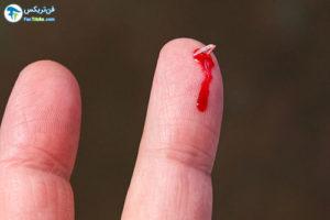 1 فرو رفتن خرده شیشه در بدن