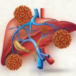 2 سازگاری بیمار با ویروس هپاتیت سی