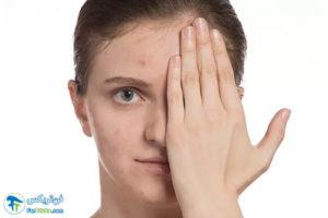 2 اثرات مخرب شستن صورت با آب داغ