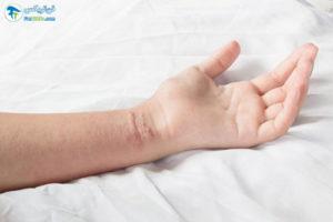 4 بیماری های مسری