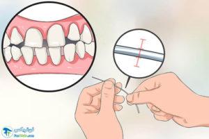 1 راهنمای انتخاب و خرید نخ دندان