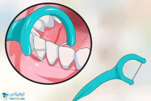 4 راهنمای انتخاب و خرید نخ دندان