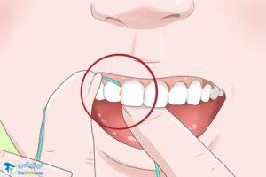 4 عوض کردن مواد پرکننده دندانها